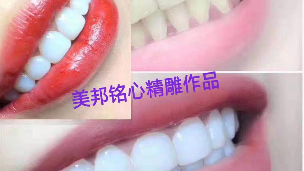 新疆明星牙齿美白方法?-【美邦铭心精雕】